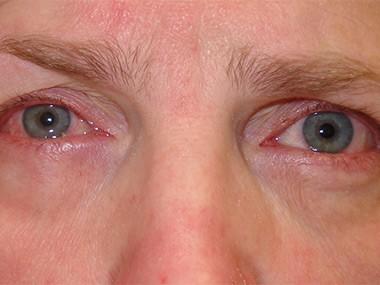 gerötetet Augen