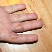 GM Entzündungen der Haut